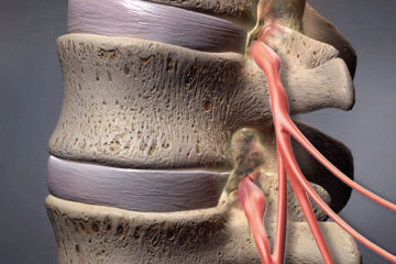 Spinal Stenosis (Narrowing)
