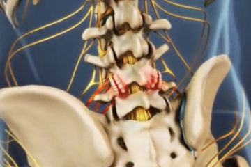 Arthritis of the Spine
