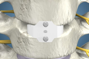 Anterior Cervical Discectomy