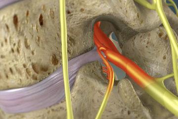 Endoscopic Foraminotomy