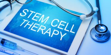 Stem Cell for Back Pain: What Is It and How Exactly Does It Work?