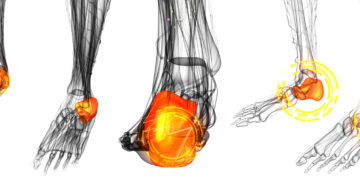 Bone Spurs: What Are They and Where Do They Come From?
