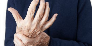 What is Facet Arthritis?: Everything You Need to Know